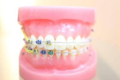 歯列矯正のよくある質問(注意点、顎関節症、歯周病、虫歯など)